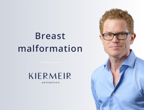 Breast Malformation in Bern by Dr. Kiermeir
